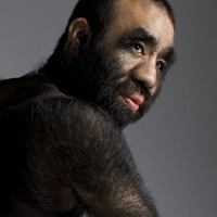 the hairiest man in the world